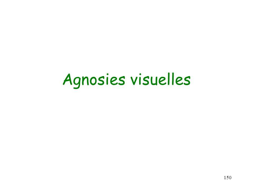 Agnosies visuelles