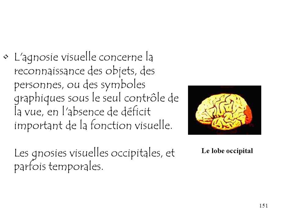 L agnosie visuelle concerne la reconnaissance des objets, des personnes, ou des symboles graphiques sous le seul contrôle de la vue, en l absence de déficit important de la fonction visuelle. Les gnosies visuelles occipitales, et parfois temporales.