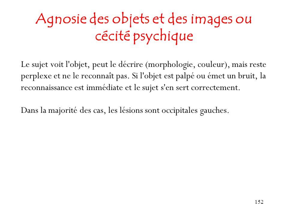 Agnosie des objets et des images ou cécité psychique