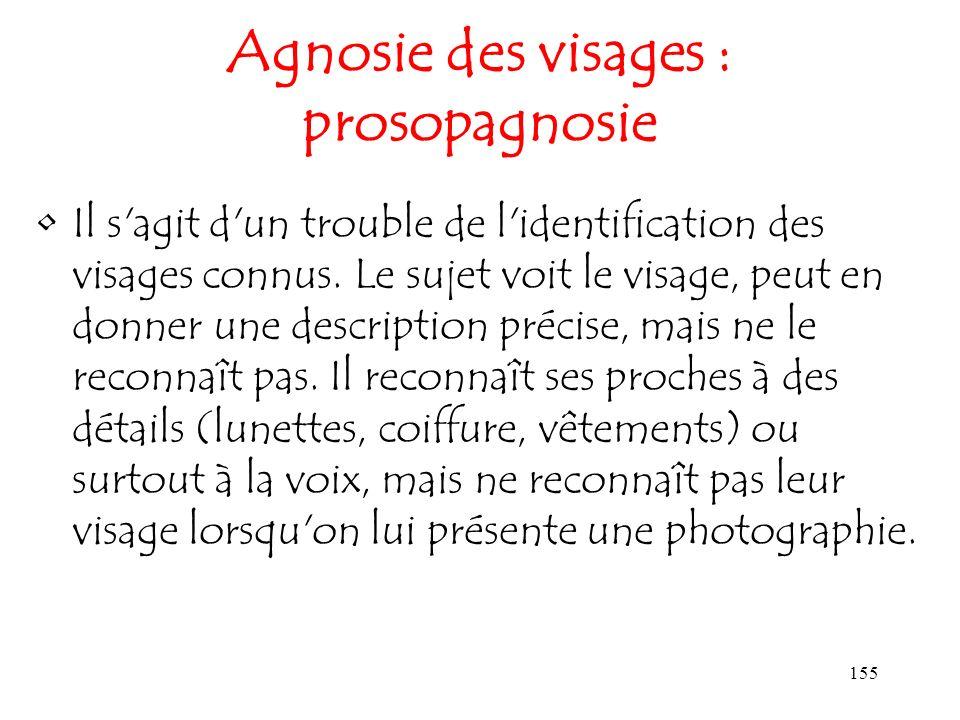Agnosie des visages : prosopagnosie