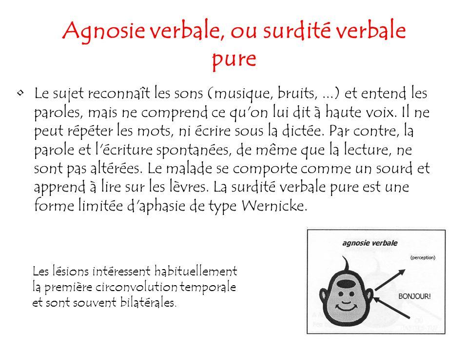 Agnosie verbale, ou surdité verbale pure