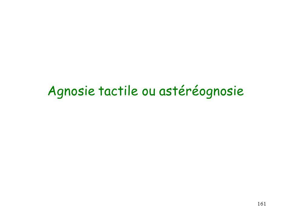 Agnosie tactile ou astéréognosie