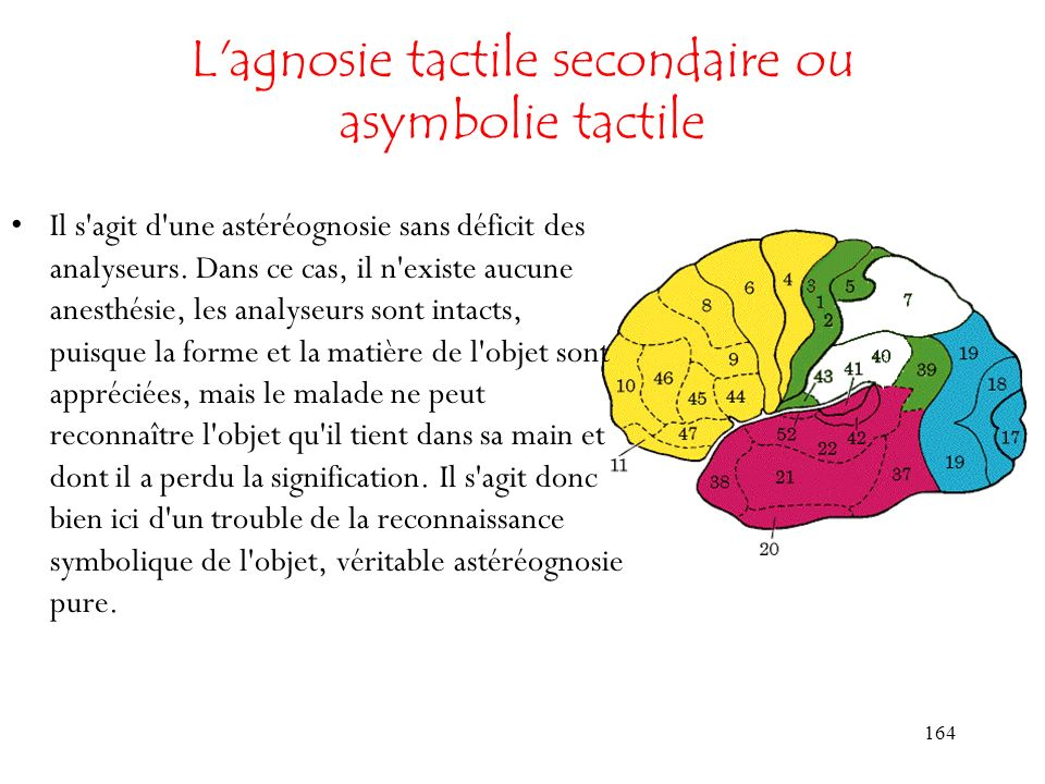 L agnosie tactile secondaire ou asymbolie tactile