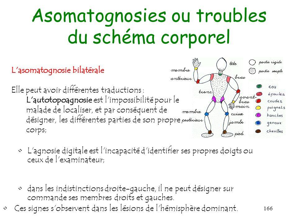 Asomatognosies ou troubles du schéma corporel