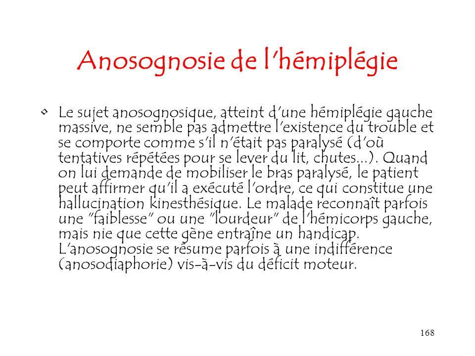 Anosognosie de l hémiplégie