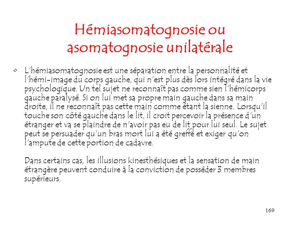 Hémiasomatognosie ou asomatognosie unilatérale