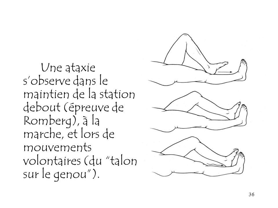 Une ataxie s'observe dans le maintien de la station debout (épreuve de Romberg), à la marche, et lors de mouvements volontaires (du talon sur le genou ).