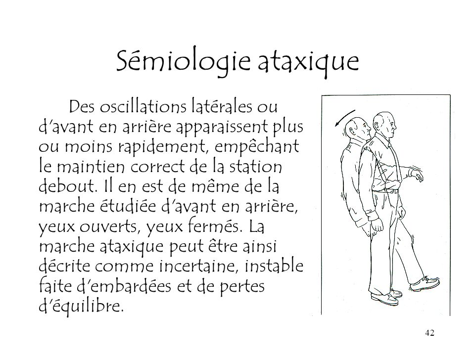 Sémiologie ataxique