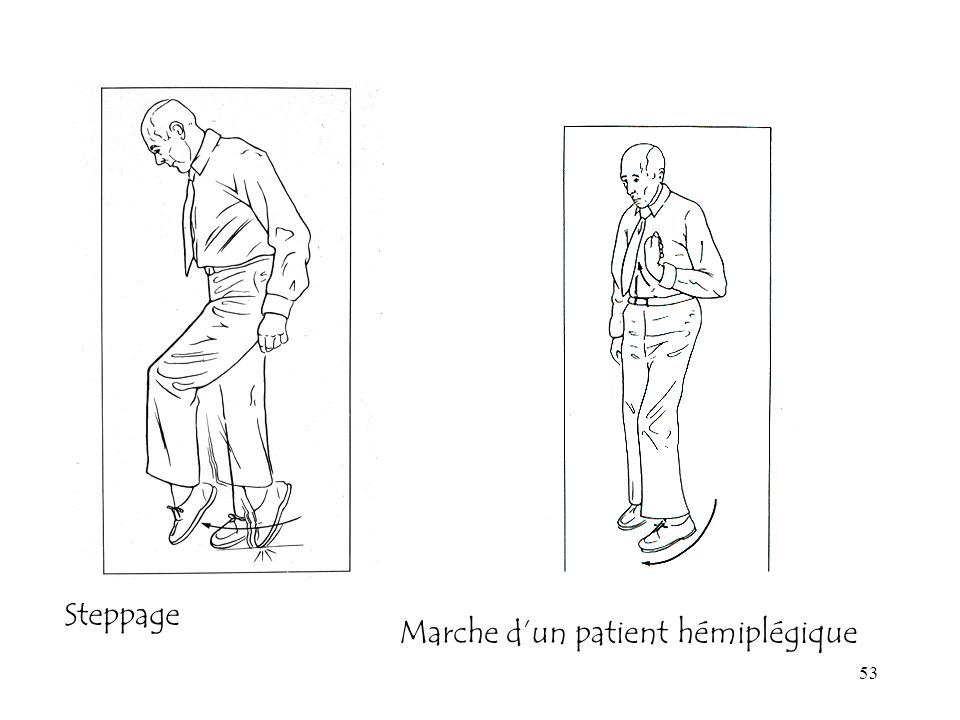 Steppage Marche d'un patient hémiplégique