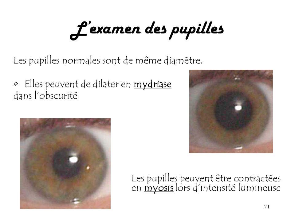 L'examen des pupilles Les pupilles normales sont de même diamètre.