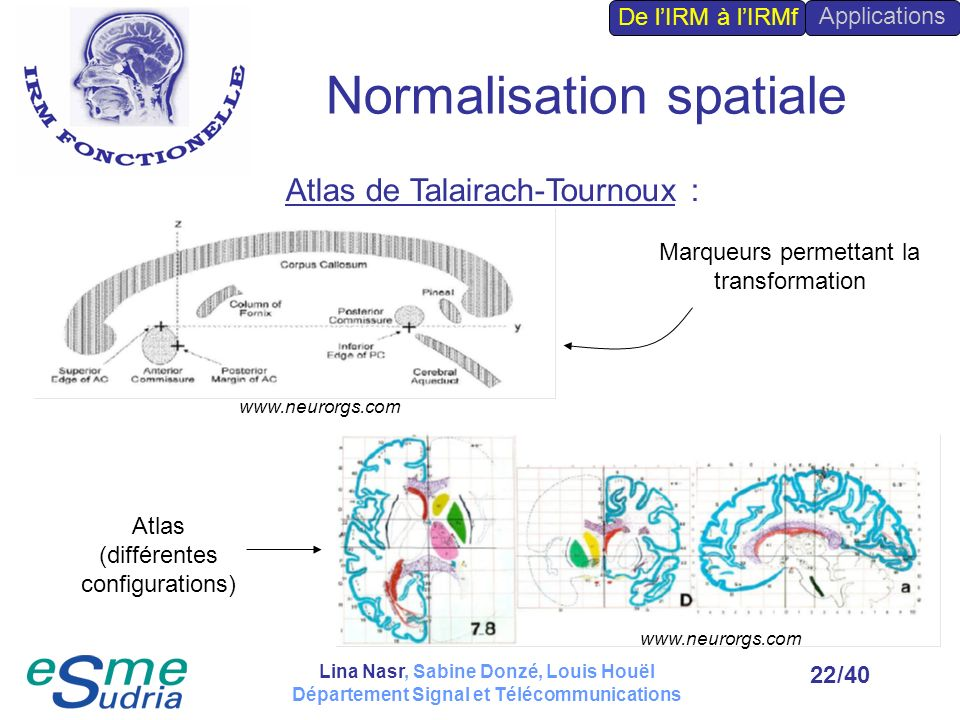 Normalisation spatiale