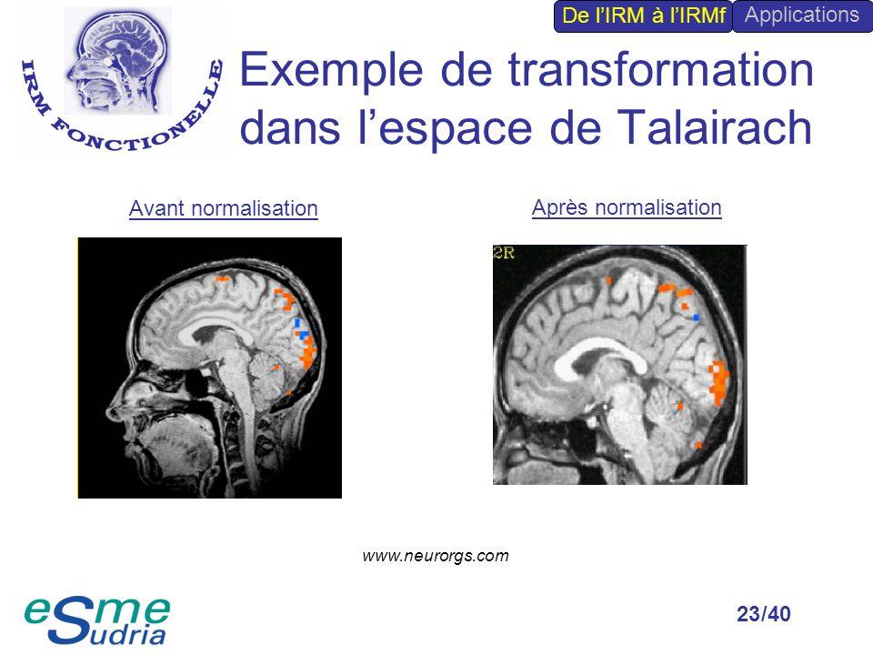 Exemple de transformation dans l'espace de Talairach