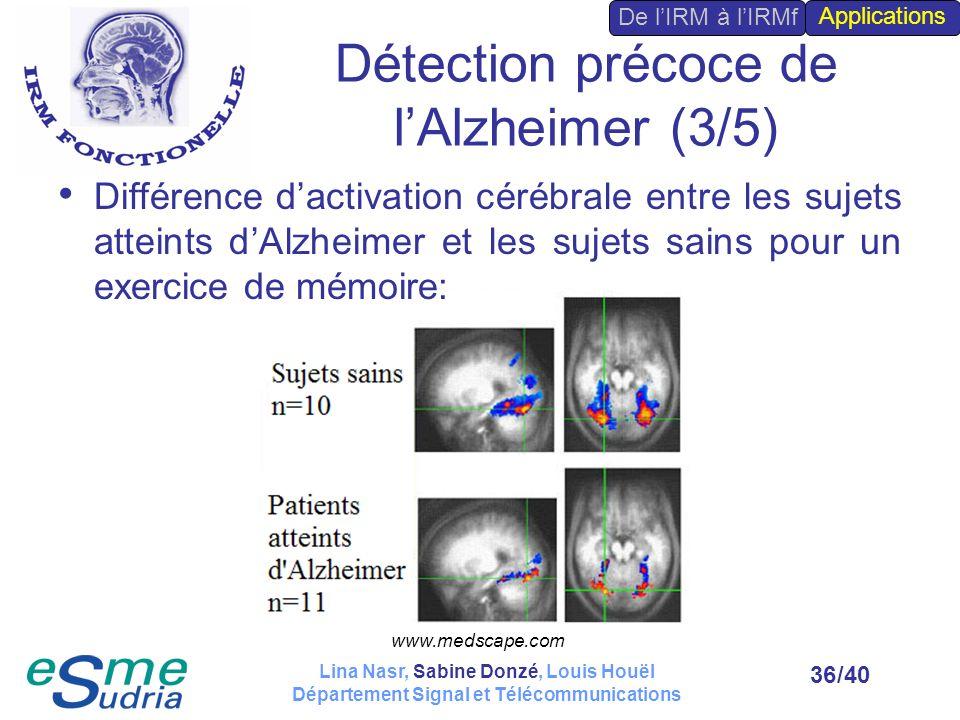 Détection précoce de l'Alzheimer (3/5)