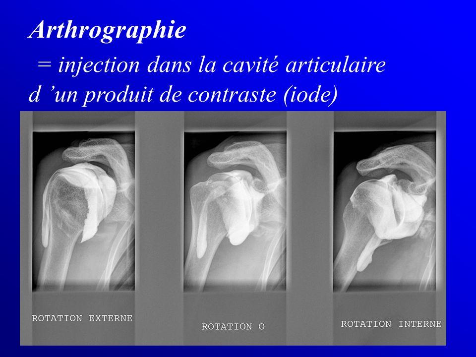 Arthrographie = injection dans la cavité articulaire d 'un produit de contraste (iode)