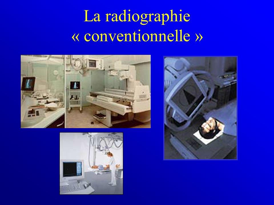 La radiographie « conventionnelle »