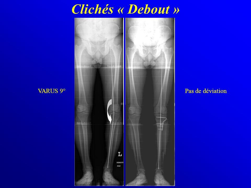 Clichés « Debout » VARUS 9° Pas de déviation