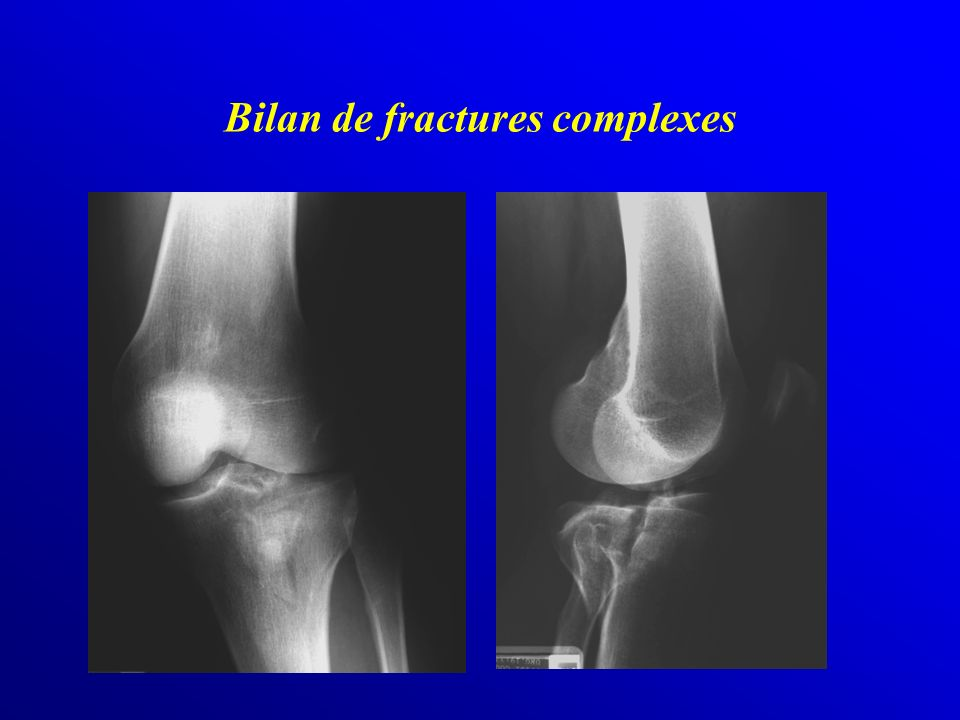 Bilan de fractures complexes