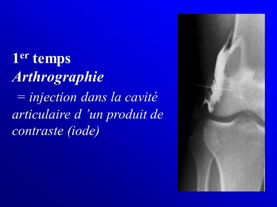 1er temps Arthrographie = injection dans la cavité articulaire d 'un produit de contraste (iode)