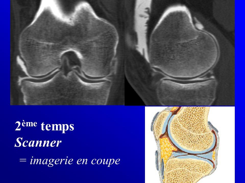 2ème temps Scanner = imagerie en coupe