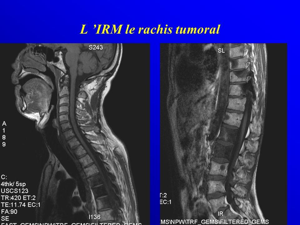 L 'IRM le rachis tumoral