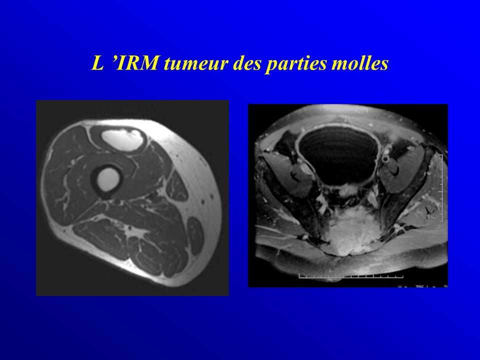 L 'IRM tumeur des parties molles