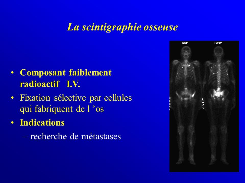 La scintigraphie osseuse
