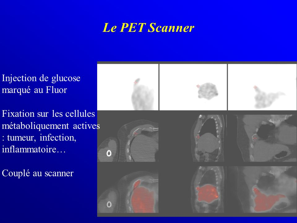 Le PET Scanner Injection de glucose marqué au Fluor