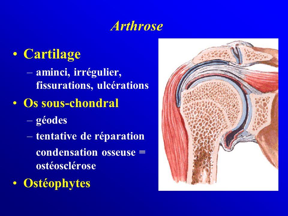 Arthrose Cartilage Os sous-chondral Ostéophytes