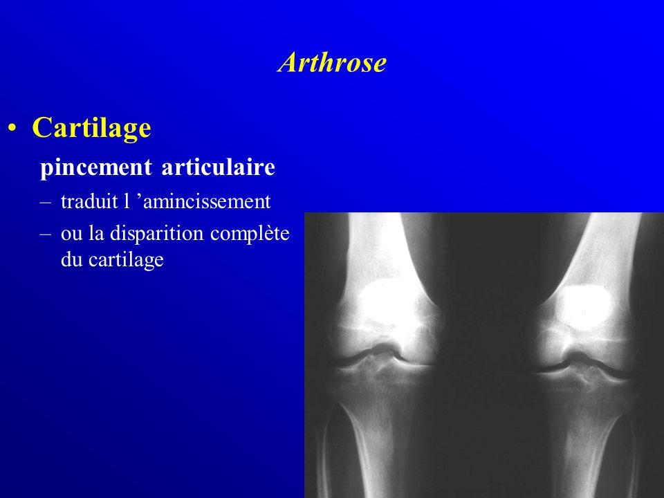 Arthrose Cartilage pincement articulaire traduit l 'amincissement