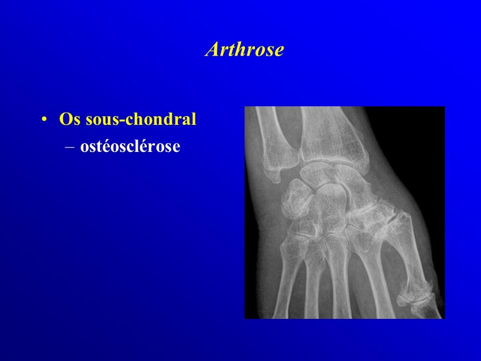 Arthrose Os sous-chondral ostéosclérose