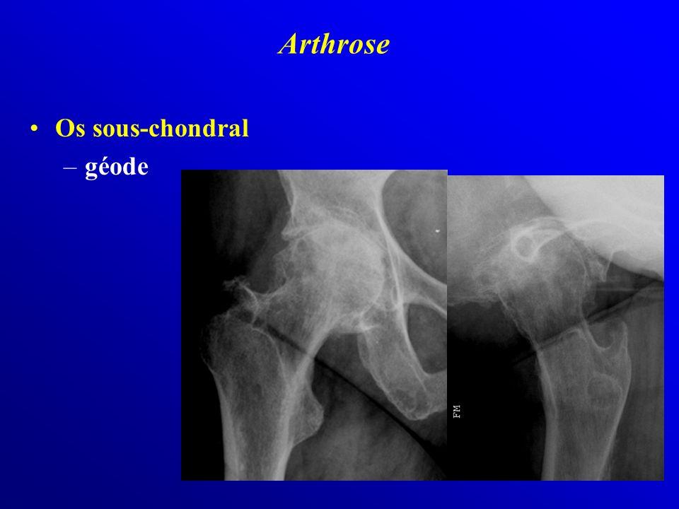 Arthrose Os sous-chondral géode