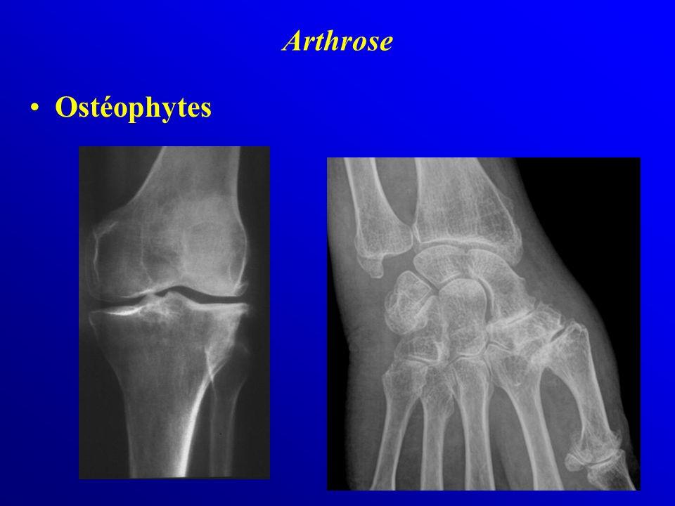 Arthrose Ostéophytes