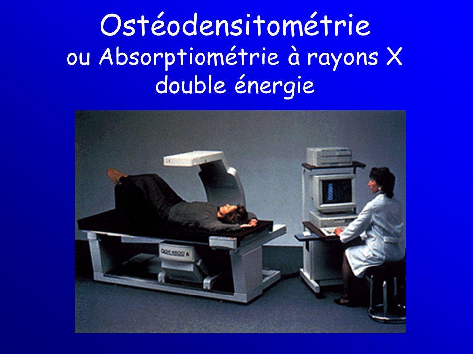 Ostéodensitométrie ou Absorptiométrie à rayons X double énergie