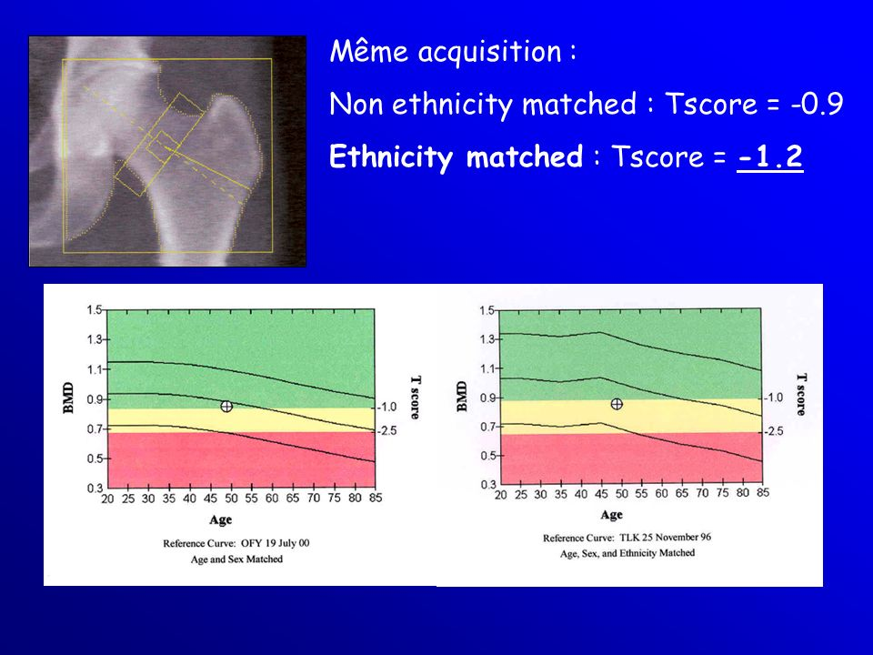 Même acquisition : Non ethnicity matched : Tscore = -0.9 Ethnicity matched : Tscore = -1.2