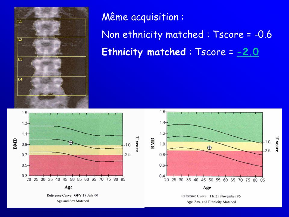 Non ethnicity matched : Tscore = -0.6