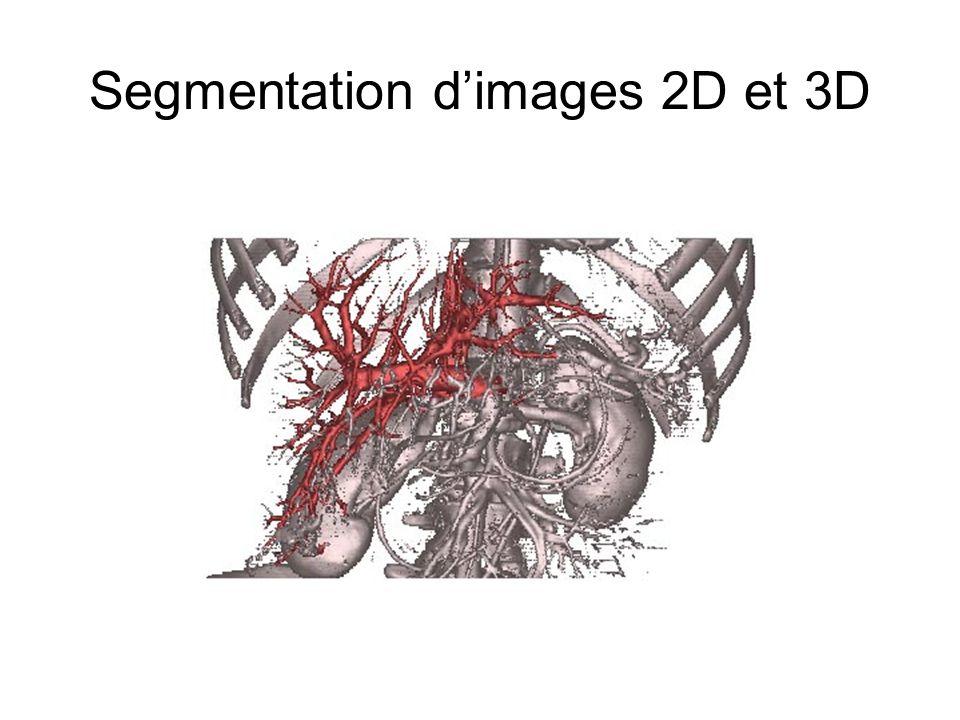 Segmentation d'images 2D et 3D