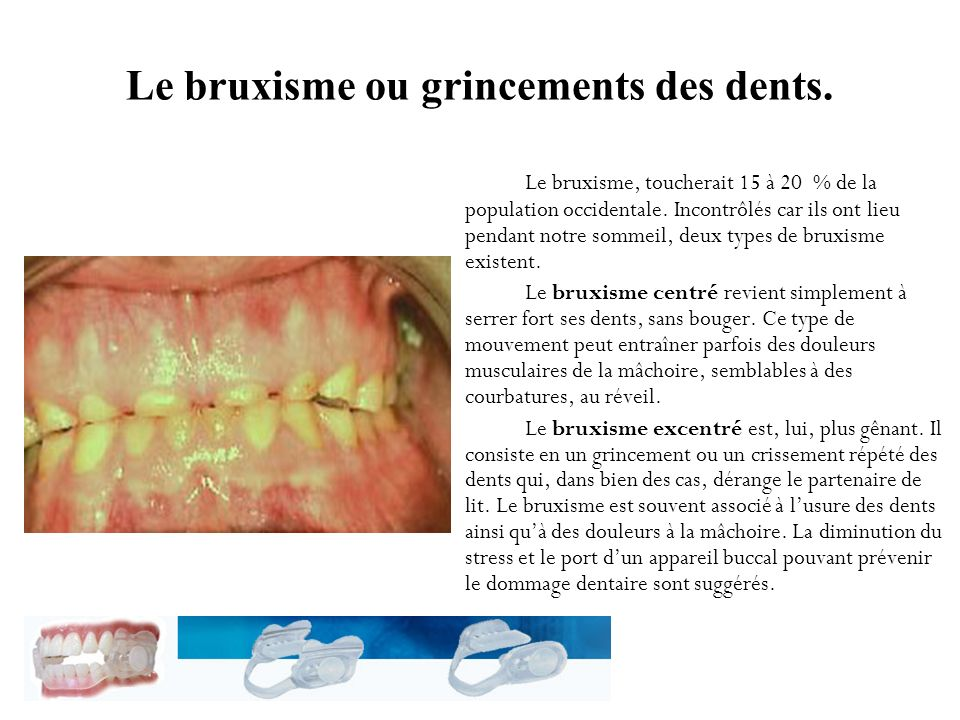 Le bruxisme ou grincements des dents.