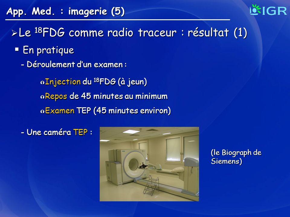 Le 18FDG comme radio traceur : résultat (1)