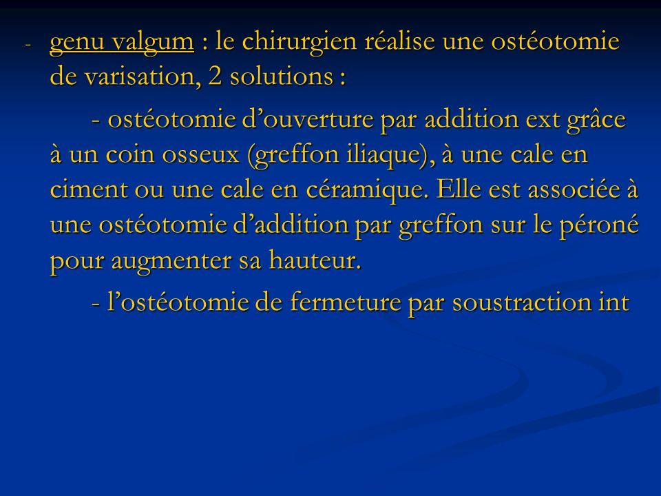 genu valgum : le chirurgien réalise une ostéotomie de varisation, 2 solutions :