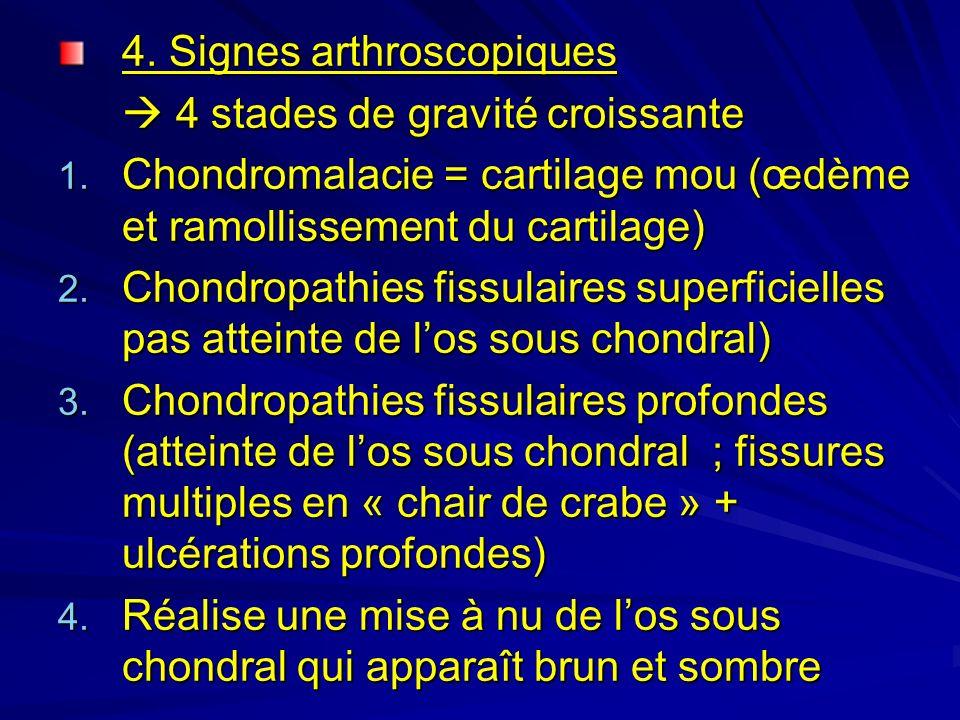 4. Signes arthroscopiques