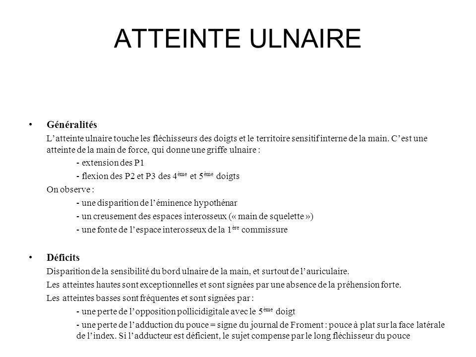 ATTEINTE ULNAIRE Généralités Déficits