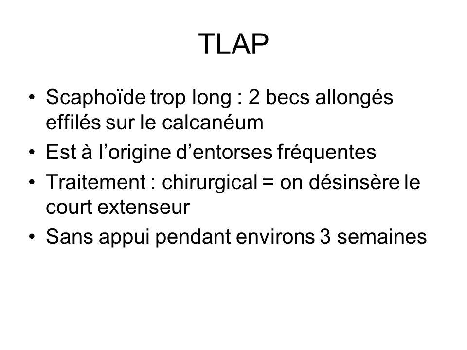 TLAP Scaphoïde trop long : 2 becs allongés effilés sur le calcanéum