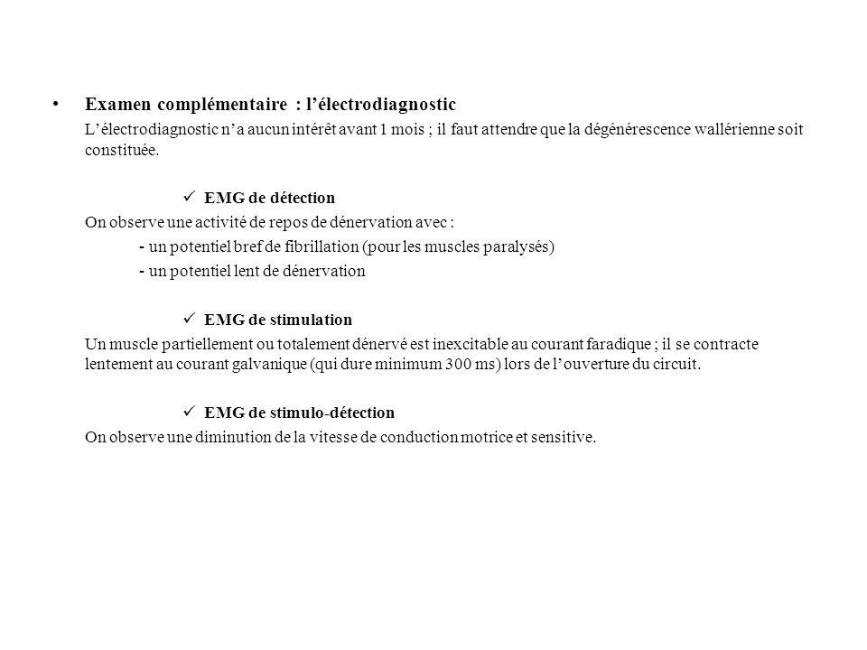 Examen complémentaire : l'électrodiagnostic