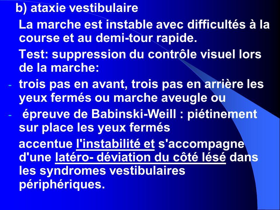 b) ataxie vestibulaire