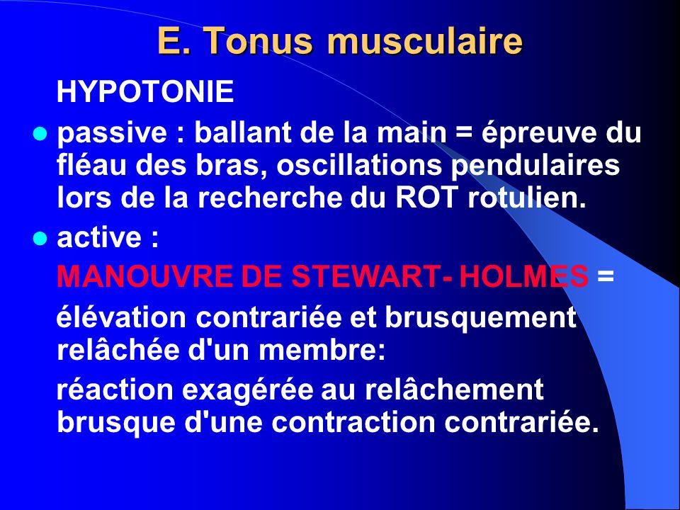 E. Tonus musculaire HYPOTONIE
