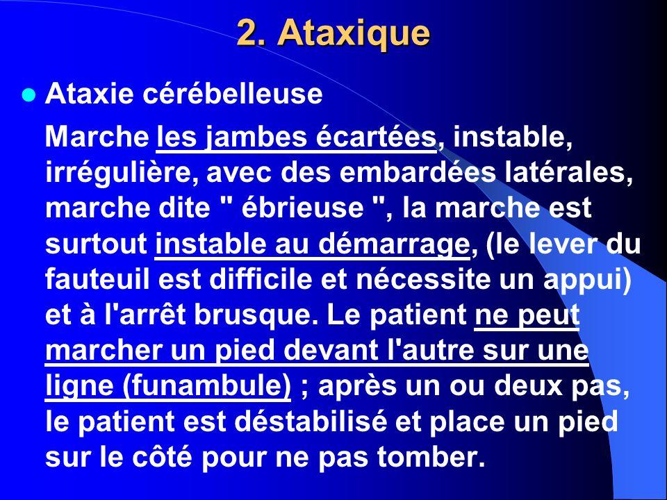 2. Ataxique Ataxie cérébelleuse