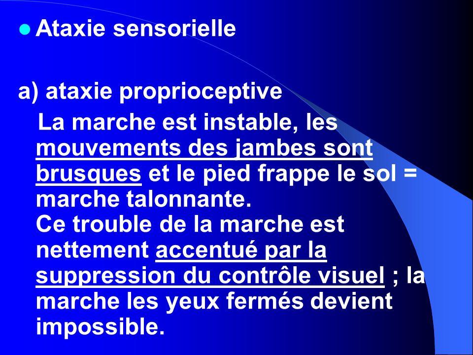 Ataxie sensoriellea) ataxie proprioceptive.