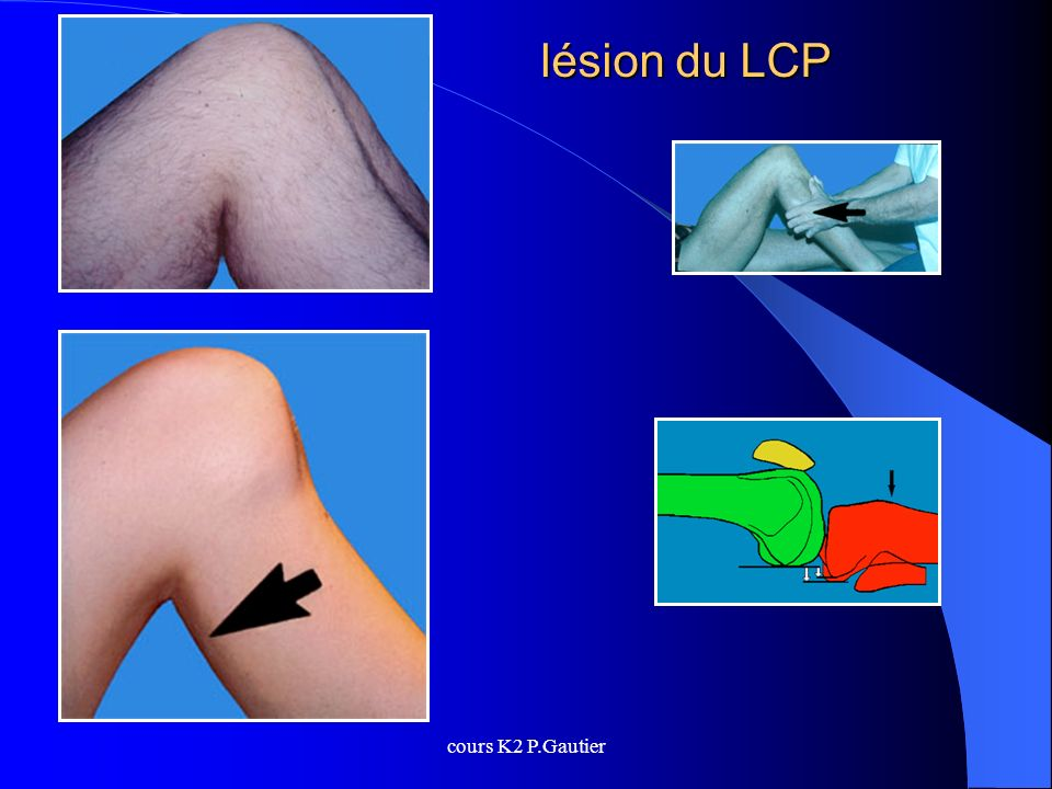 lésion du LCP cours K2 P.Gautier