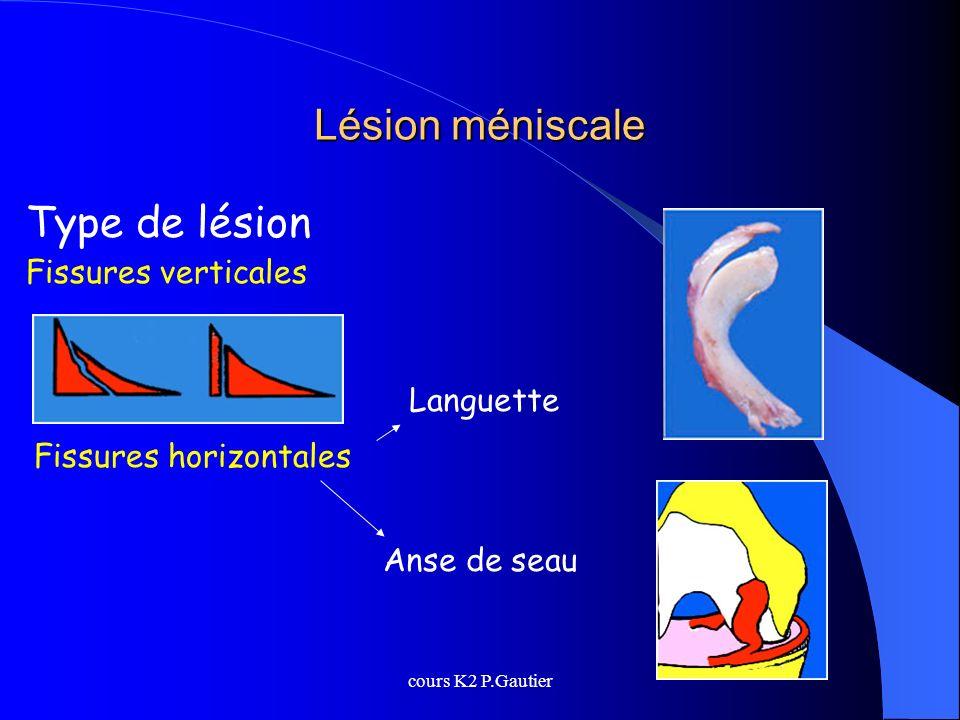 Lésion méniscale Type de lésion Fissures verticales Languette