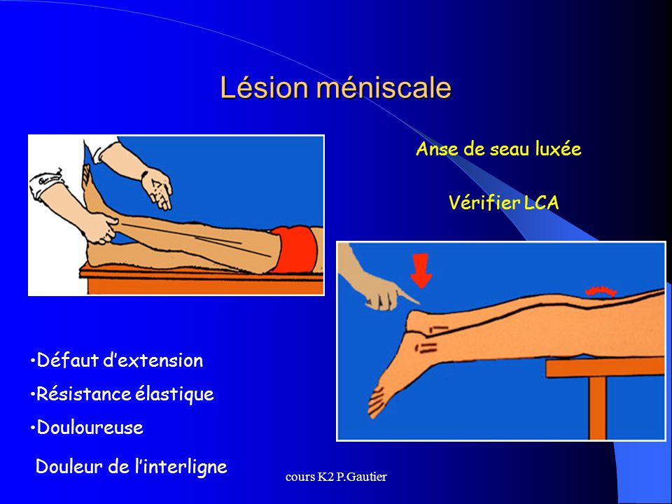 Lésion méniscale Anse de seau luxée Vérifier LCA Défaut d'extension